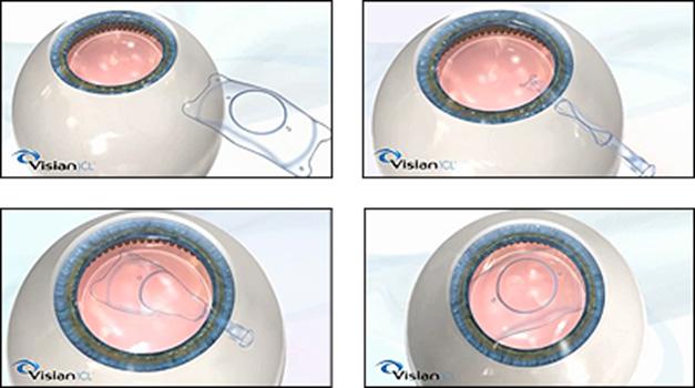 超高度近视矫正ICL