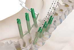 TINA微创脊柱后路内固定系统