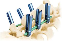 脊柱微创系统I型