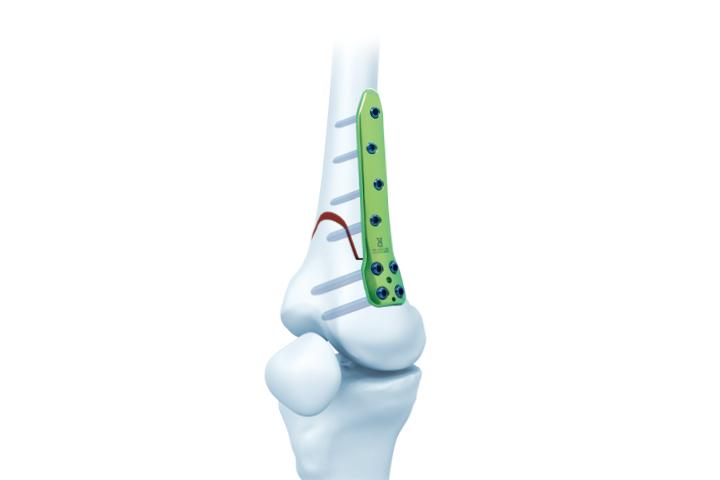 金属锁定接骨板系统