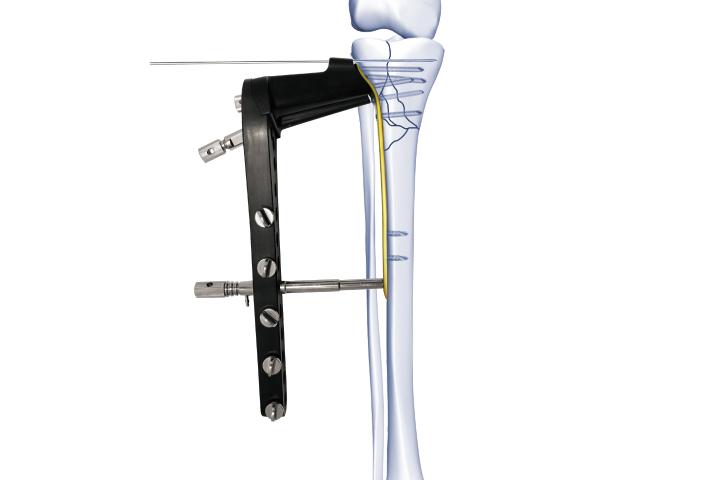 胫骨近端锁定板Ⅱ型