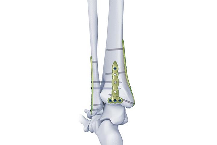 三踝固定系统