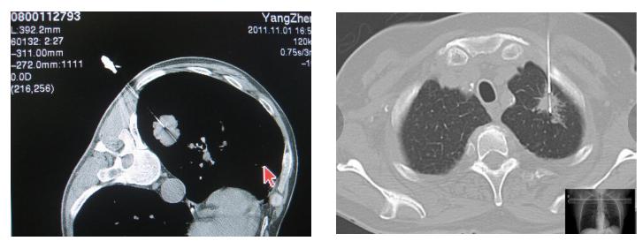 以临床为依托 开展影像诊断新技术