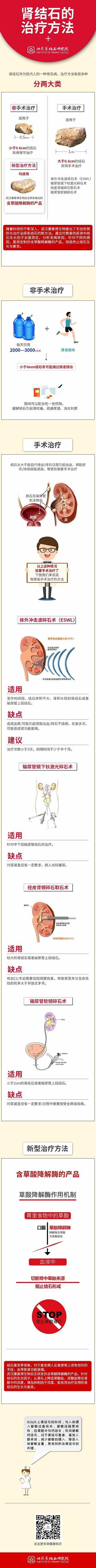 肾结石的治疗方法