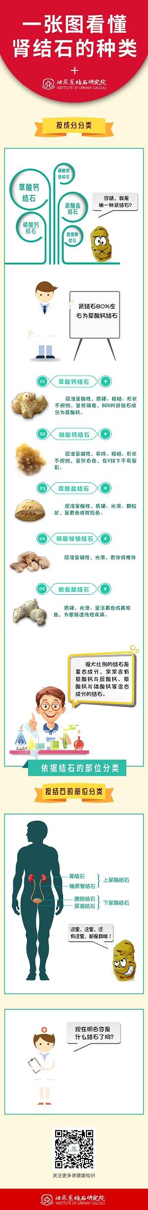 肾结石的种类
