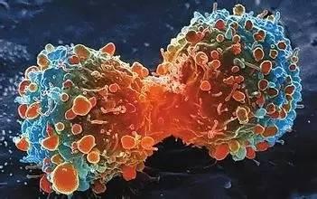 重大突破,癌细胞,竟被中国医生用小苏打