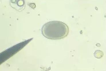 放养鸡体内寄生虫调查及防制措施探讨
