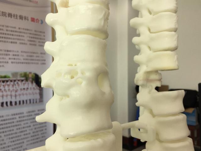 """广东首例!3D打印""""仿生脊椎""""植入男子体内,成功取代患病脊椎"""