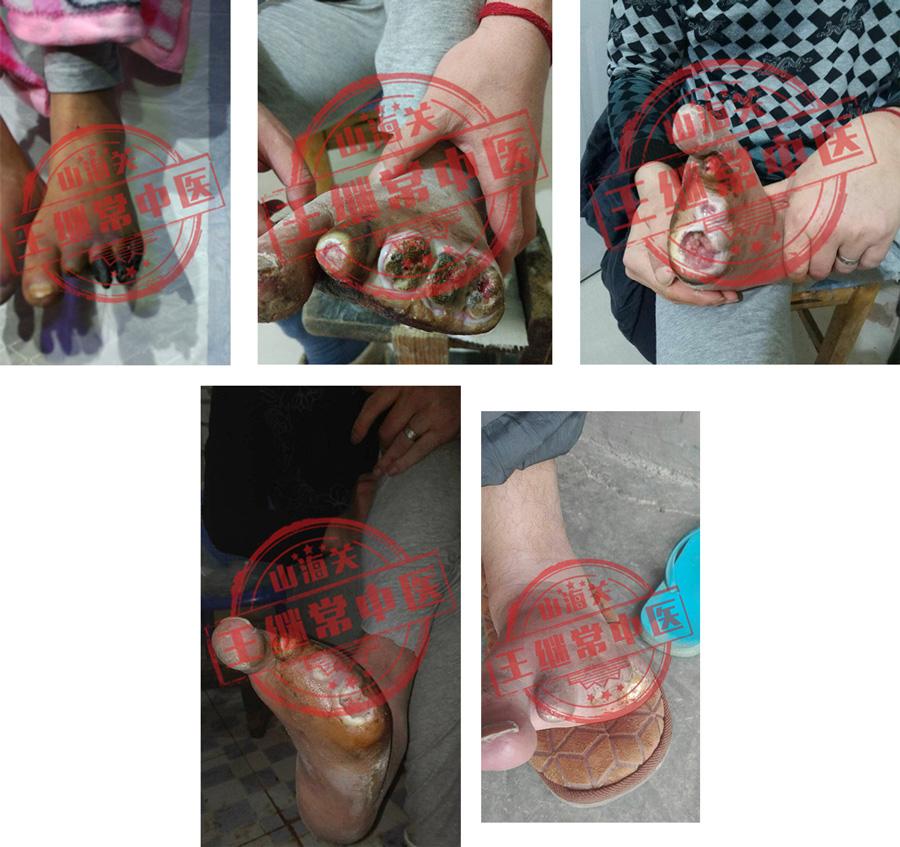 左脚趾干枯坏死,两个月后伤愈封口