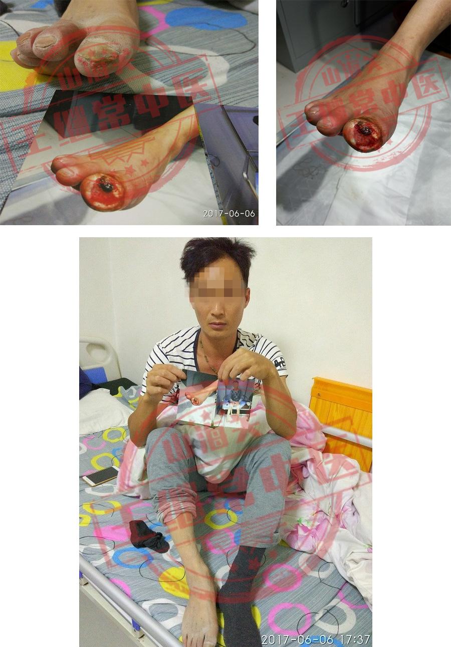 右脚拇趾溃烂,治疗一个月伤口愈合