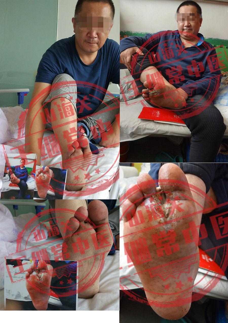 足趾间深度溃烂,治疗一年后愈合