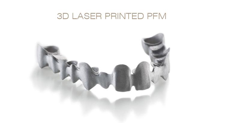 3D打印生物烤瓷
