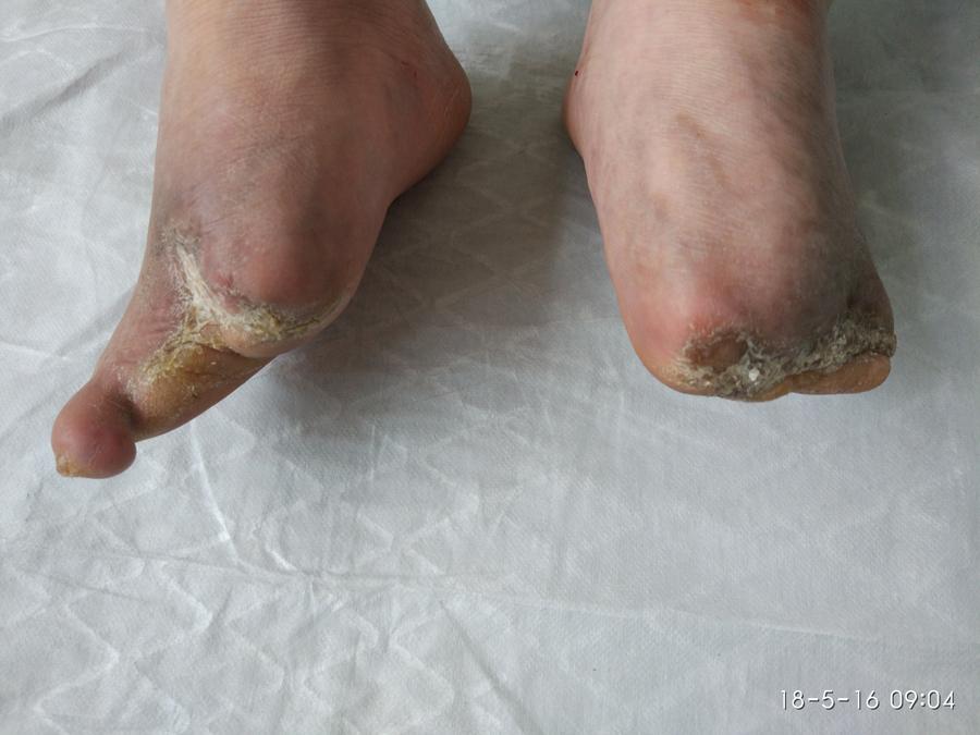 右足四趾脱落溃烂面,治疗4个月后愈合