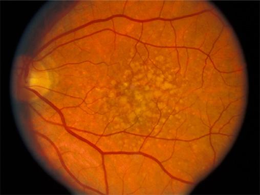 老年人的眼底病主要有哪些?