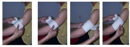 户外拓展训练时受伤该如何包扎?绷带包扎的方法介绍