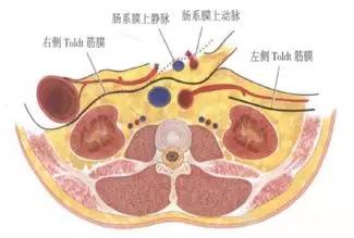 【腹腔镜篇】结直肠癌手术的入路图解