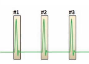 示波器分段存儲在串行 總線測試中的應用
