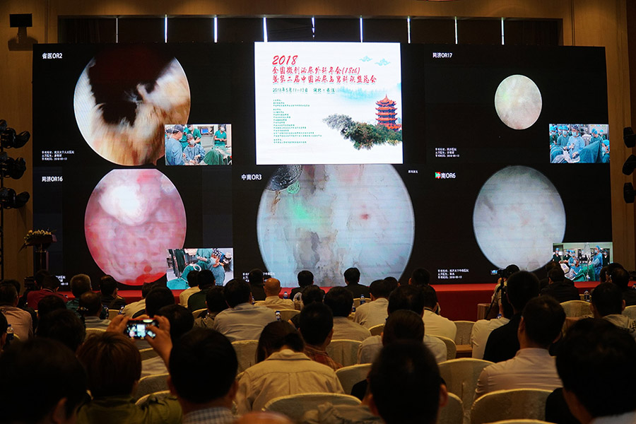 国产一次性光纤镜优势显著,会中手术效果与电子镜媲美