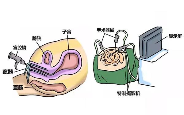 【宫腔镜科普】女性健康守护神