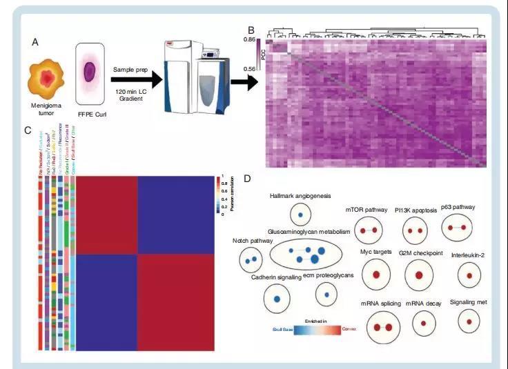再下一城!Neuro-Oncology:蛋白质组学揭示脑膜瘤临床差异化的分子分型