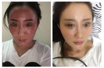 中藥調理祛斑護膚