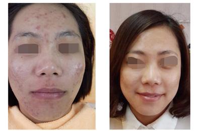 中藥調理祛痘護膚