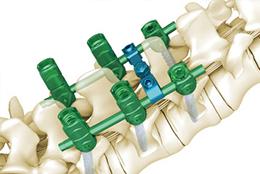 金属脊柱内固定器