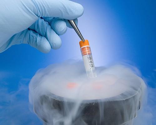 干细胞存储技术