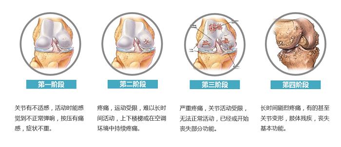 SVF治疗骨关节炎