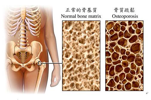 骨质疏松与骨质增生究竟啥关系