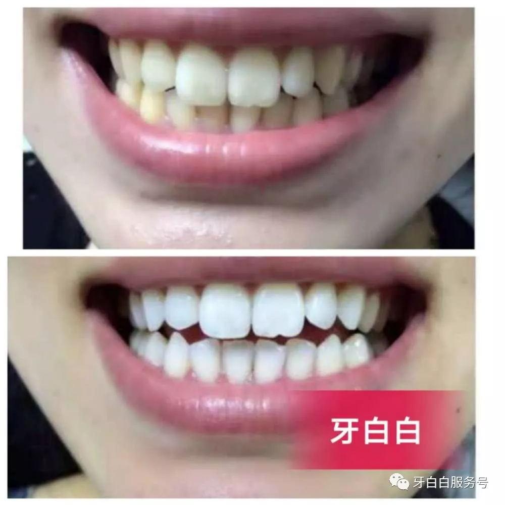 牙白白-植物光感美白