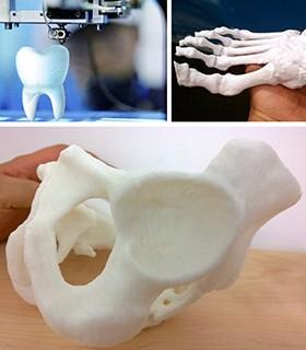 3D打印之醫療應用