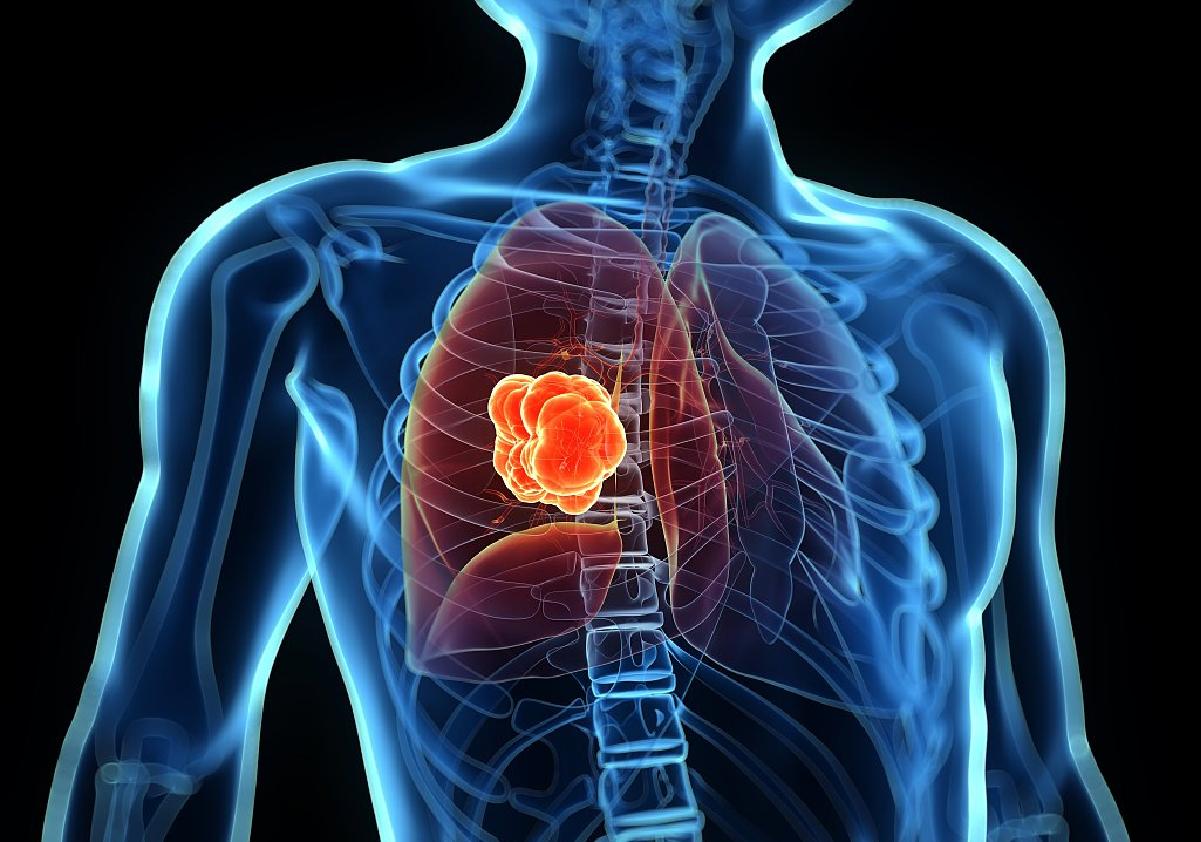 一篇文章讲明白什么是雾化吸入式治疗