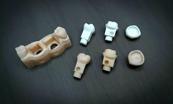 创新运用陶瓷|3D打印氧化锆全瓷假牙
