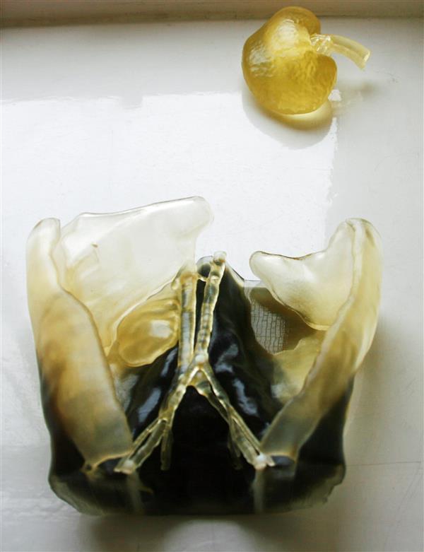 医生使用3D打印技术为2岁男孩做复杂肾脏移植手术