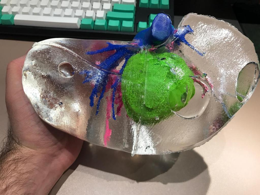 辅助肿瘤手术的 3D 打印肝脏模型普及有望,仅需不到 150 美元