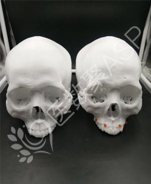 "3D打印实现外科手术的""私人订制"""
