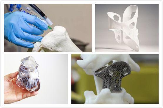 3D打印医疗器械市场规模将突破96亿美元,企业如何应对接下来的挑战?