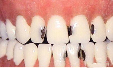 蛀牙对小孩的影响,家长都选择无视?