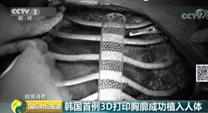 韩国首例3D打印胸廓移植成功!原预计只能活6个月患者:感觉要飞