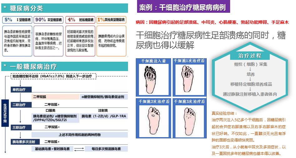 日本干细胞再生诊疗