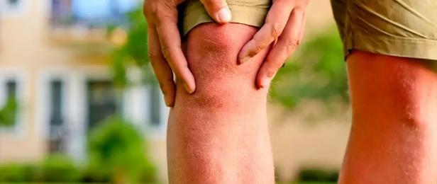 骨关节疾病可造成全身的危害,我们要如何重视?