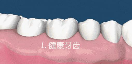 90%的国人都存在的牙齿误区,看看你有没有!
