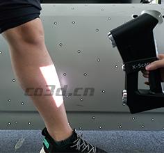 人体腿部三维扫描