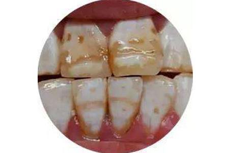 牙黄是哪些因素导致的?