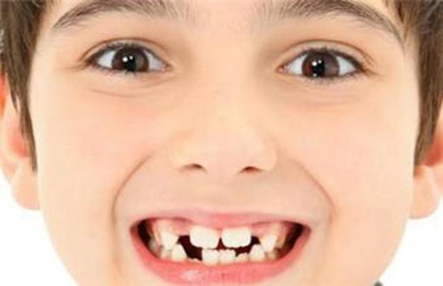 到底什么时候给孩子做牙齿矫正?