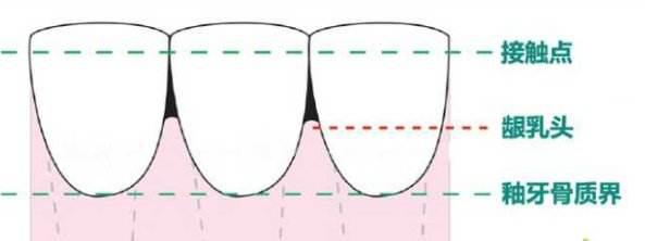黑三角——牙齿矫正惹的祸?