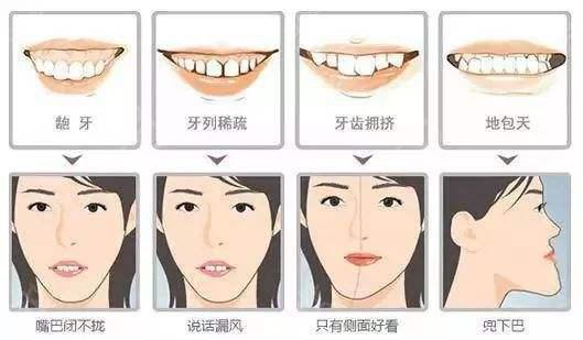 牙不好,是遗传造就,还是后天形成?