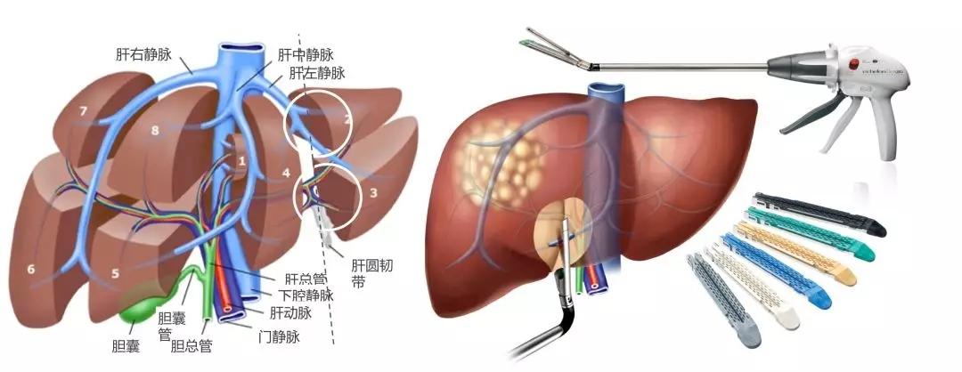 【腹腔镜篇】肝左外叶切除