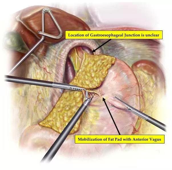 【腹腔镜篇】食管旁疝修补术